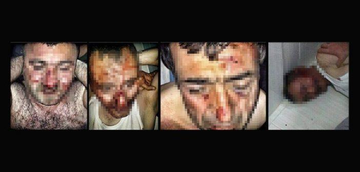 """İnsan Hakları İzleme Örgütü (HRW) raporu: """"İşkence ve insan kaçırma Türkiye'ye geri dönmüş"""""""