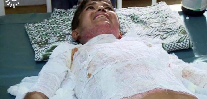 """Kimya uzmanı Dr. : Yaralanan çocuğun vücudundaki izler """"yasaklı beyaz fosfor"""" kullanıldığını gösteriyor"""